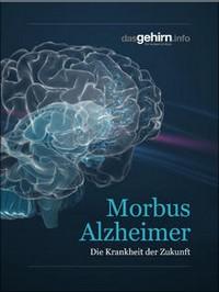 "Kostenloses E-Book ""Morbus Alzheimer"""